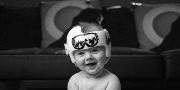Plano de saúde deve fornecer capacete de órtese craniana