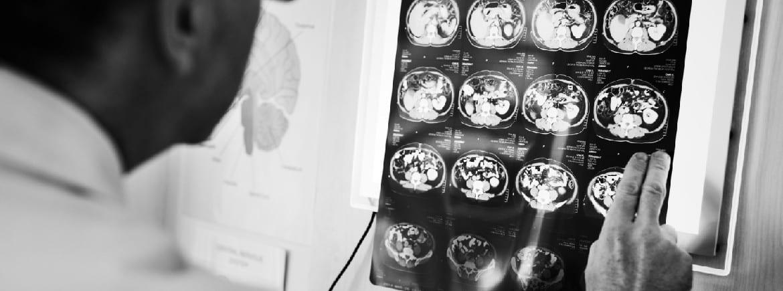 Eletroconvulsoterapia (ECT): o que é e para que serve?